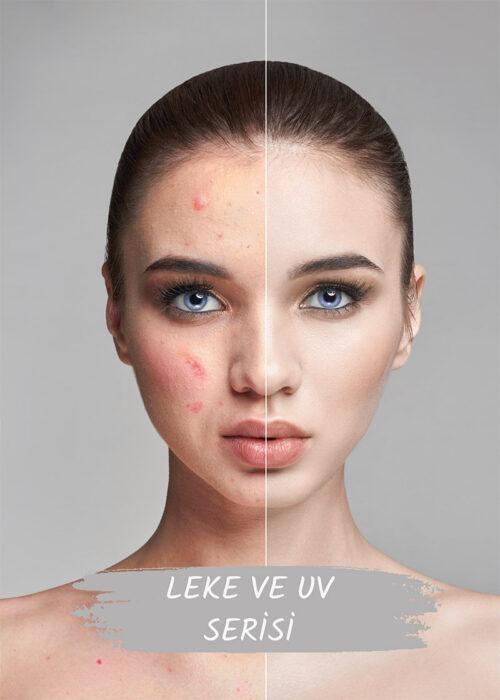 Leke Tedavisi ve UV Işınları Tedavisi